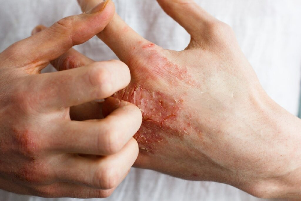 5 Eczema Types To Familiarize Yourself With