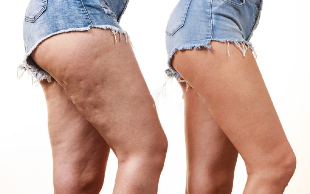 12 Ways To Get Rid of Cellulite Naturally