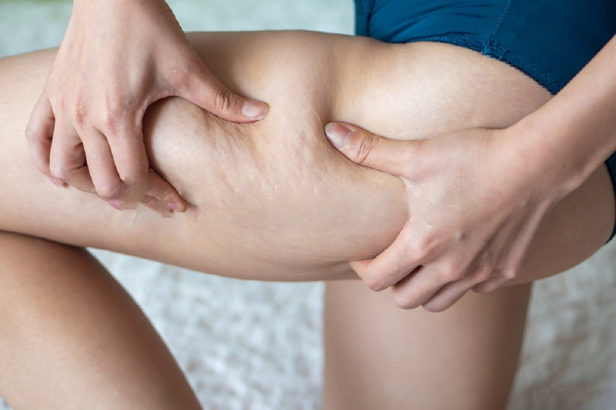 Still Frustrated With Your Cellulite Legs?