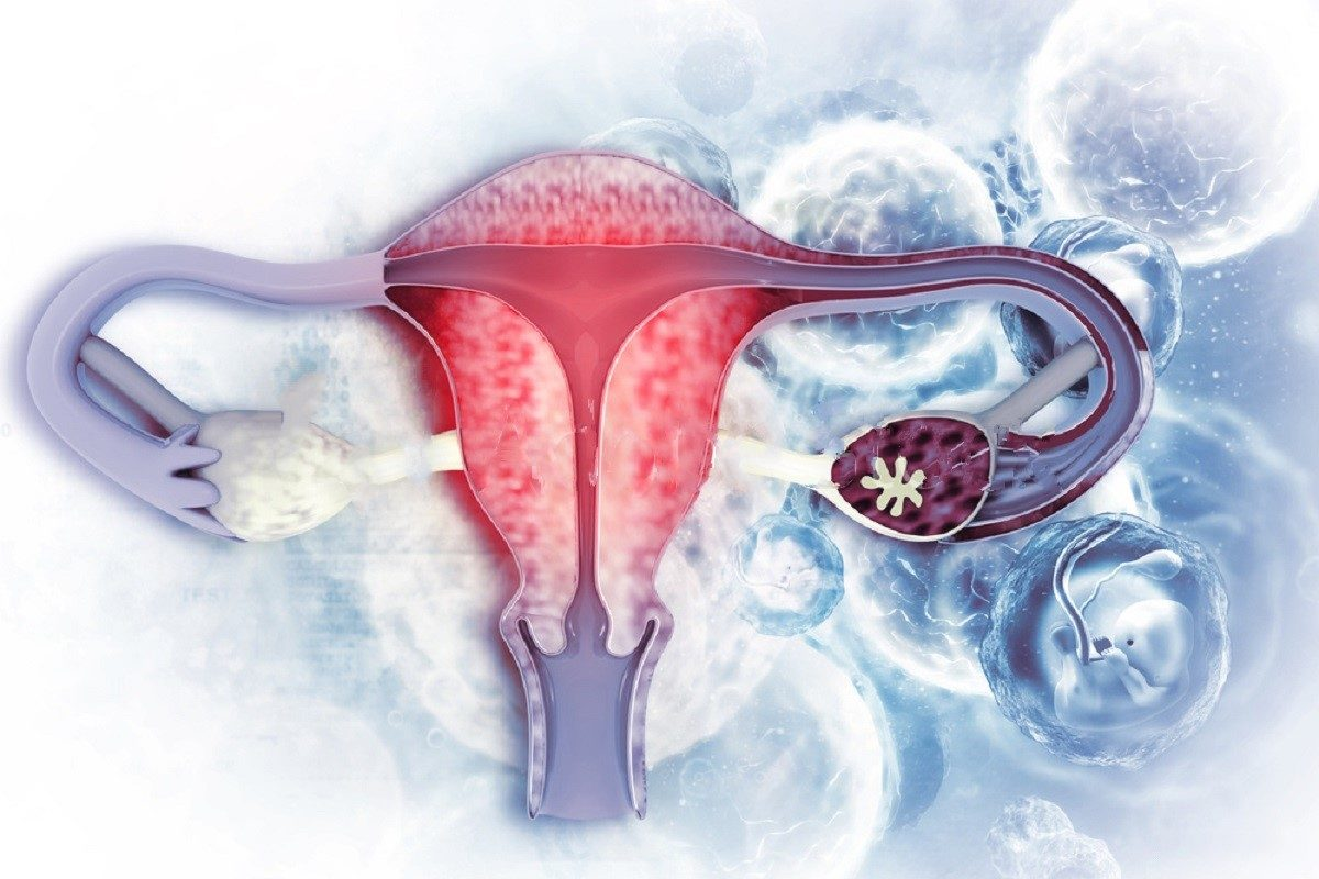 What Are Uterine Fibroids?