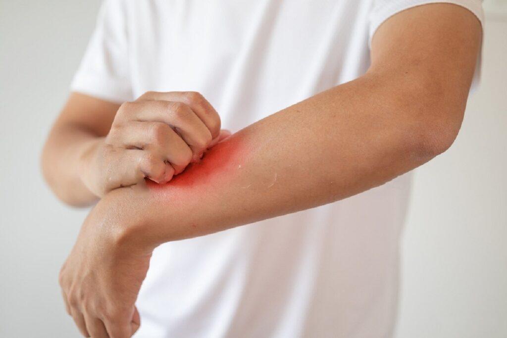 5 Natural Ways To Combat Eczema