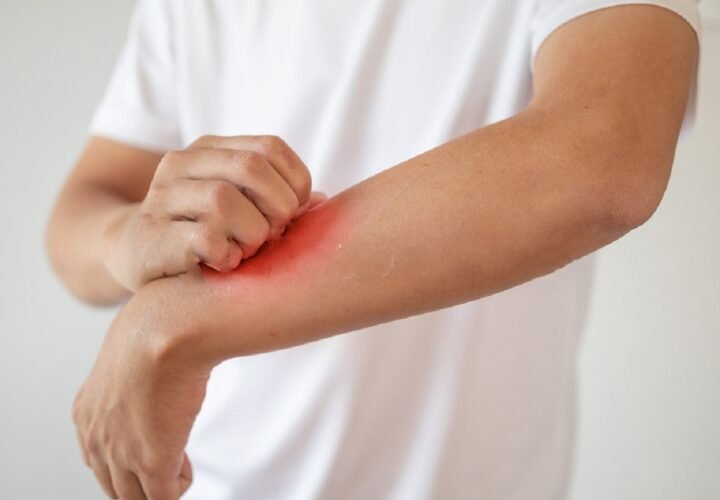 5 Natural Ways To Combat Eczema
