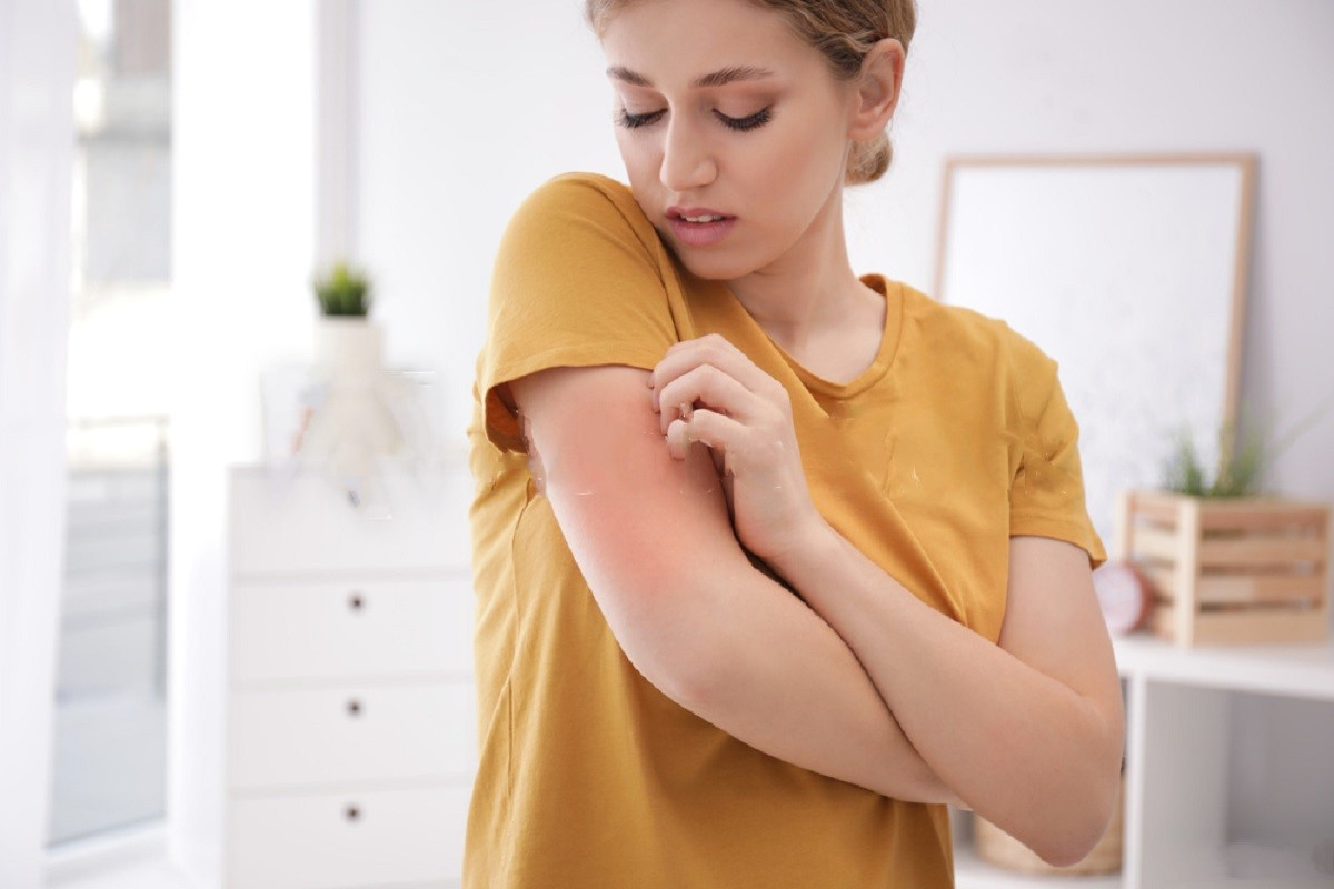 Eczema Symptoms To Keep An Eye Out For
