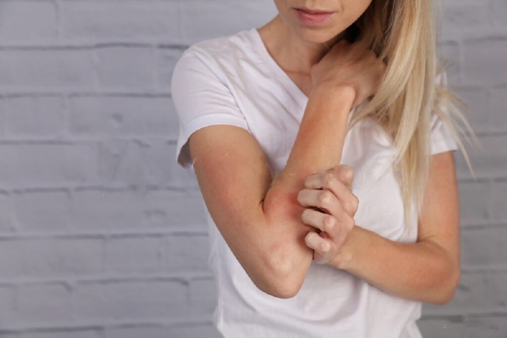 Natural Eczema Treatment For You To Pursue